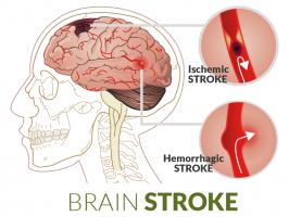 pencegahan dan pengobatan stroke (www.biosprayin.com)